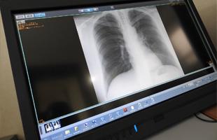 デジタルX線画像診断の写真